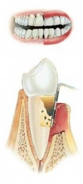 Zeer ver gevorderde parodontitis